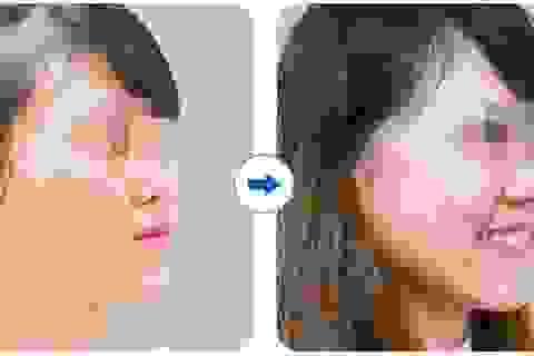 Điều trị sẹo hiệu quả sau 1 liệu trình tại KIM Hospital