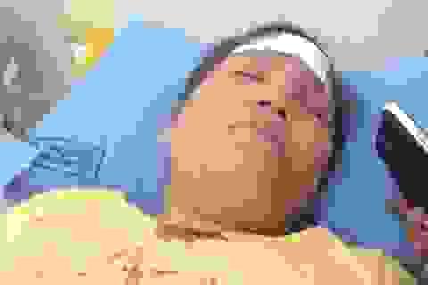 Đòi CMND tại công ty giới thiệu việc làm, một phụ nữ bị đánh nhập viện