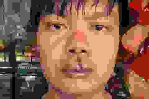 Côn đồ lao vào nhà đánh người vừa tố cáo doanh nghiệp gây ô nhiễm