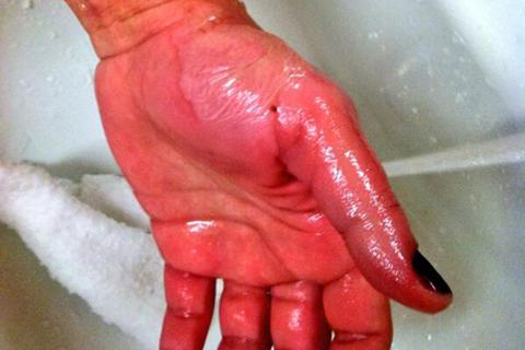 50 người bị bỏng vì hất nước sôi làm thí nghiệm