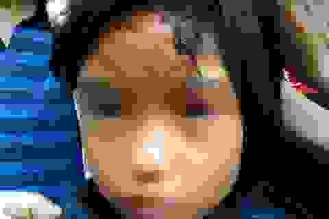 Vụ bé gái bị đánh, nhốt trong chùa: Sư trụ trì viết bản kiểm điểm
