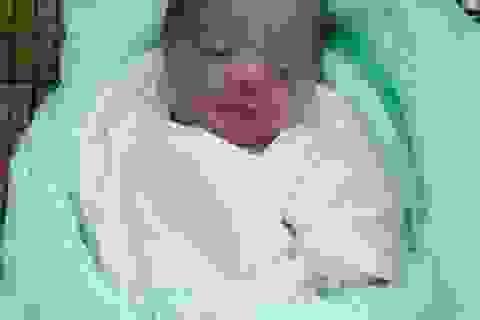 Bé gái sơ sinh bị bỏ rơi trong bụi chuối