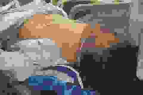 Nghi án một tài xế taxi bị cướp đâm trọng thương