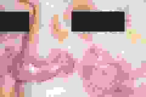Biến chứng nguy hiểm từ lupus ban đỏ