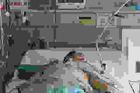 Nguy kịch vì chủ quan với cúm H1N1