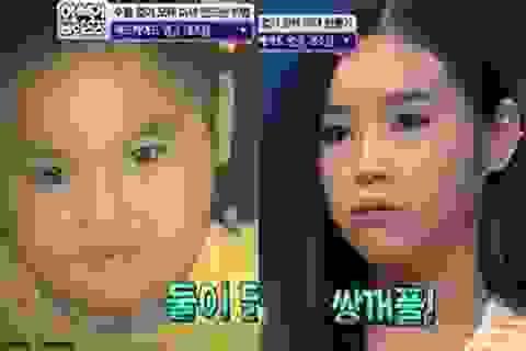 """Mẹ Hàn Quốc """"nắn"""" mặt cho con bằng mát-xa và thìa"""