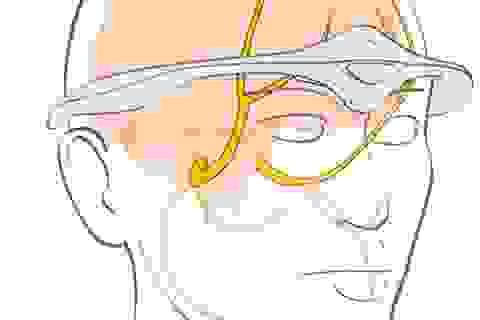 FDA phê duyệt máy ngăn chặn cơn đau nửa đầu