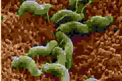 Tránh ung thư dạ dày, phải diệt vi khuẩn HP