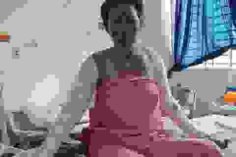 Một thai phụ bỏng nặng vì bếp gas mini