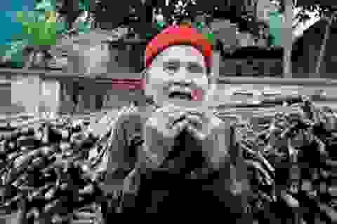 Ông lão 90 tuổi mọc lại cả hàm răng