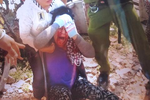 Chánh Thanh tra Sở Y tế bổ cuốc vào đầu một phụ nữ