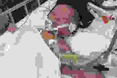 Dịch sởi bất thường: Bệnh viện nói có, Bộ Y tế khẳng định không!