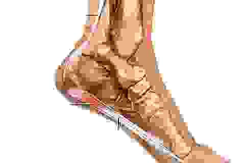 Trị chứng viêm gân mặt bàn chân