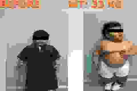 Bé 2 tuổi được phẫu thuật dạ dày để giảm béo