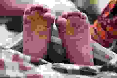 Bị cắn mất 3 ngón chân trong lúc ngủ vẫn không biết