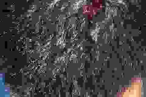 Một du khách tố bị đánh vỡ đầu vì không ngồi ghế trên bãi biển