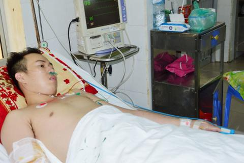 Hy hữu ca tràn dịch ngoài tim, rối loạn đông máu do sốt xuất huyết