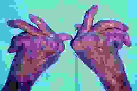 Ói ra máu vì lạm dụng thuốc chứa Corticoid điều trị viêm khớp
