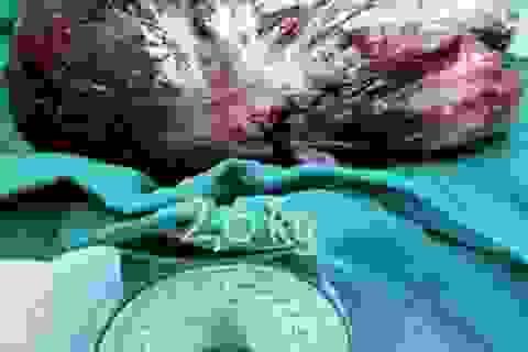 U màng phổi khổng lồ ép tim sang lồng ngực phải