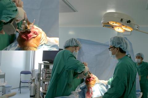 Bệnh viện huyện thực hiện thành công kỹ thuật thay khớp gối cho người bệnh