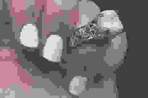 Nhẫn đính hôn làm từ... răng chú rể