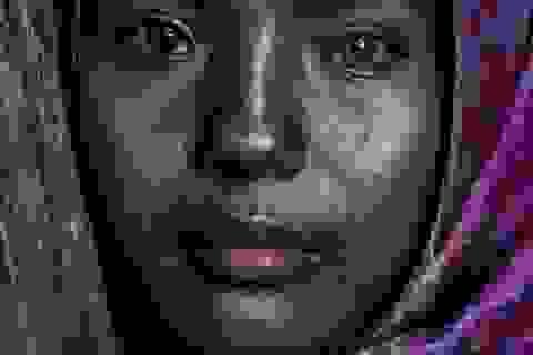 Cô gái Việt mang hai màu mắt kỳ lạ trên báo nước ngoài