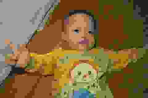 Mong manh sự sống của bé trai 2 tuổi mắc bệnh Down, tim bẩm sinh