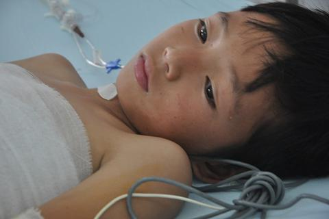 Đùa nghịch với bạn, cậu bé 10 tuổi dân tộc Dao bỏng cồn kinh hoàng