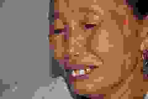 Thiếu 70 triệu đồng, người phụ nữ dân tộc Dao mắc bệnh tim có nguy cơ chết não