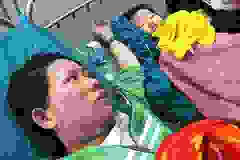 Bồng con nấu ăn, 2 mẹ con bị bỏng nặng