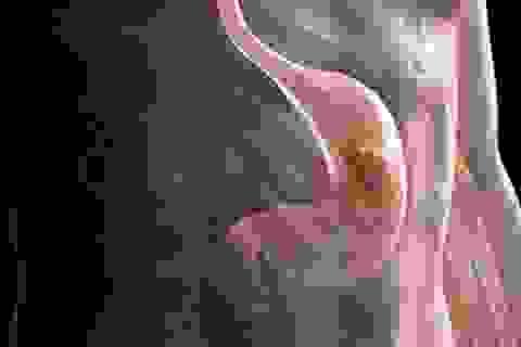 Sau tin dữ ung thư dạ dày, làm sao chăm người bệnh tốt?