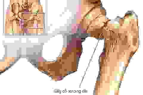 Bệnh loãng xương – đừng nên chủ quan