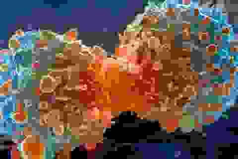 Phần lớn các ca mắc ung thư là không may!