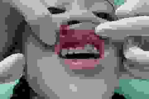 Trẻ 11 tuổi bị rách môi vì mắc cài chỉnh nha đâm vào
