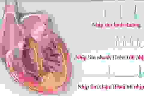 Những điều cần biết khi bị rối loạn nhịp tim