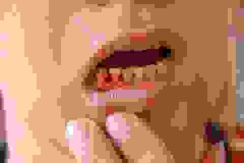 Xử lý triệt để chảy máu chân răng