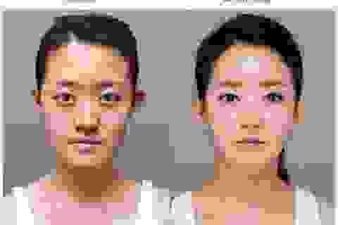 """Du khách sang Hàn Quốc phẫu thuật """"làm khó"""" Hải quan"""