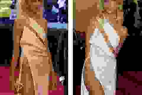 Diện váy xẻ cao, siêu mẫu gây sốc với chân gầy guộc