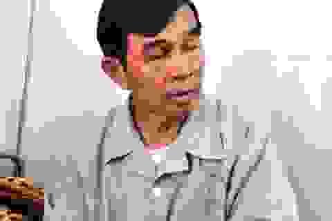 Kẻ say rượu tấn công Chủ tịch nghiệp đoàn nghề cá ở Lý Sơn nhập viện