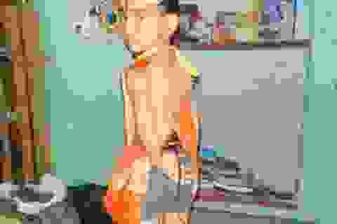 """Bé 6 tuổi """"mọc đuôi"""" được tôn thờ như thánh ở Ấn Độ"""