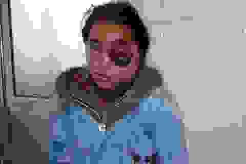 Đoạn trường cô bé người Mông và con mắt chờ ngày nổ tung