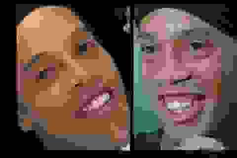 Ronaldinho khoe nụ cười sau ca phẫu thuật răng
