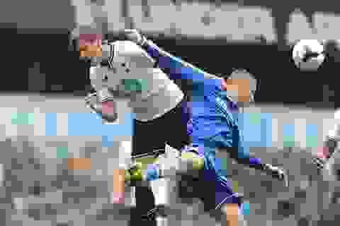 Cào mặt đối phương, Torres đối diện với án treo giò 4 trận