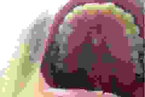 Mọc răng ngay giữa… vòm miệng