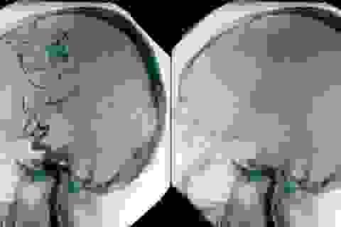 Cơ thể vẫn sống sau khi người chết não?