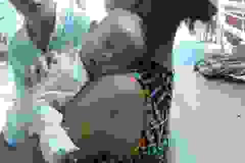 Trẻ nhập viện đông sau tiêm vắc xin Quinvaxem là do… tâm lý?