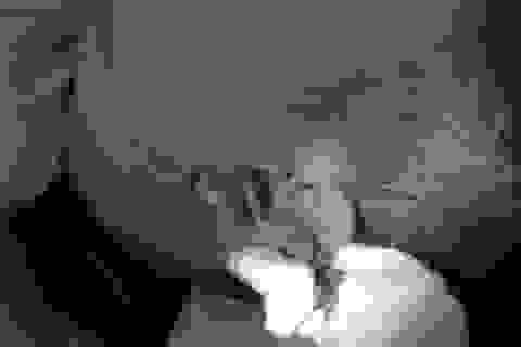 Hà Nội: Nam thanh niên bị hàng xóm chém rách tai