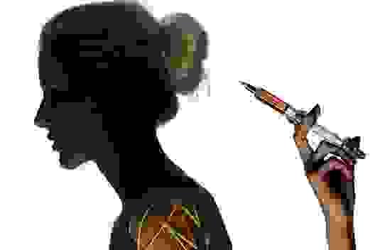 Tiêm botox làm đẹp tóc: Quá nguy hiểm!