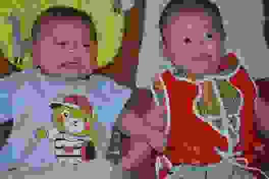Đau nhói lòng cảnh 2 đứa trẻ song sinh khát sữa bên người mẹ mắc u não