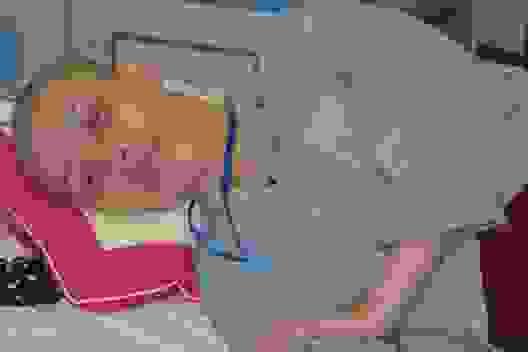 Xót xa cảnh cô giáo mầm non đau đớn chống chọi bệnh ung thư quái ác